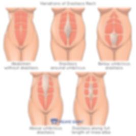 Diastasis (1).jpg