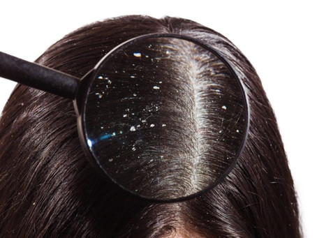 How to deal with dandruff ?