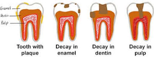 ADA cavities.jfif