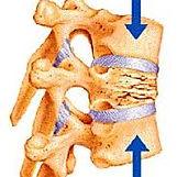 vertebrae.jpeg