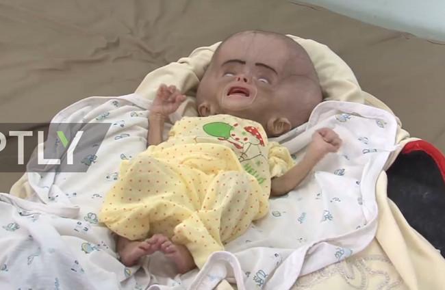 Οι βομβαρδισμοί στην Υεμένη έχουν πρόσωπο - Δραματική η αύξηση των νεογνών με δυσπλασίες και βαριές