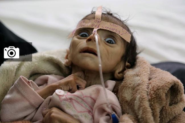 Επείγουσα έκκληση του ΟΗΕ για τα παιδιά της Υεμένης - 1.000 θύματα κάθε επτά ημέρες