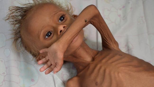 CAAT: 5,3 δισ. ευρώ τα κέρδη της Βρετανίας από το ανθρωπιστικό έγκλημα σε βάρος της Υεμένης