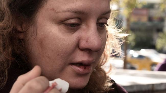 Επίθεση τραμπούκων της Χρυσής Αυγής κατά δικηγόρου πολιτικής αγωγής - ΦΩΤΟΓΡΑΦΙΕΣ