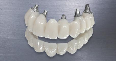Cirkonska konstrukcija sa direktnim dosjedom u implantat