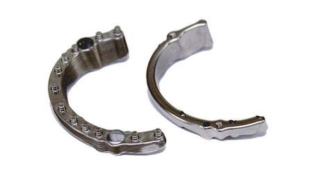 Implant prečka