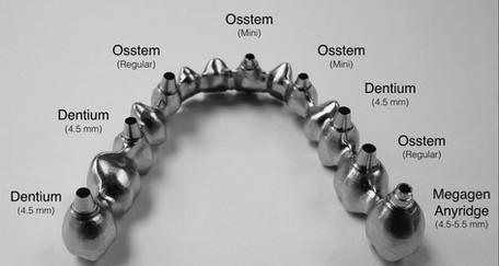 Reducirani most sa direktnim dosjedom u implantate različitih proizvođača