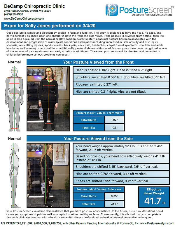 Posture Ray Example.PNG