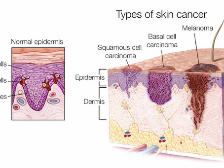 The Importance of Sunscreen & Protecting the Skin