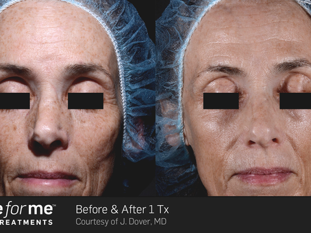 How to Reduce Fine Lines & Wrinkles with Heal Strong Aesthetics