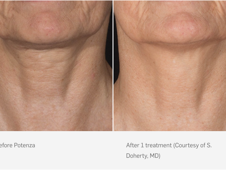Revitalize Your Skin with Potenza RF Microneedling