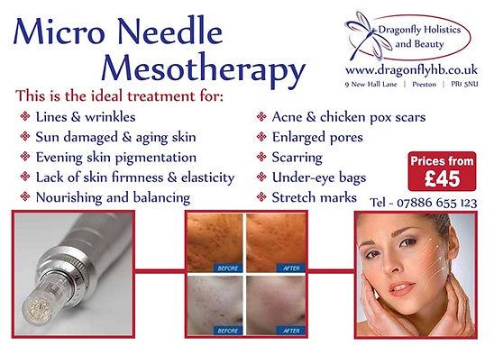 Micro needle meso.jpg