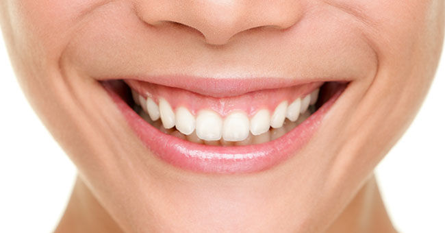 GUMMY SMILE (DISMINUCION DE ENCIA)