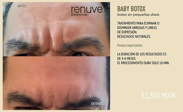 BABY BOTOX - MP4 RENUVE.jpg
