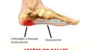 Bailarina(o) com dor na sola dos pés pode ser.... Fascite Plantar