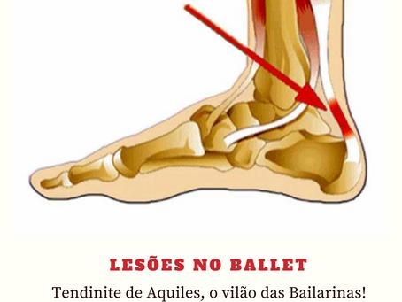 Ballet x Tendinite de Aquiles