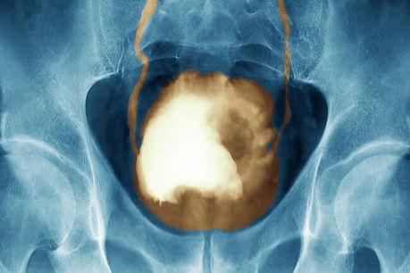 xray_of_bladder_cancer.jpg