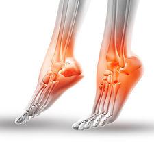 足の骨画像