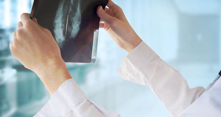 Doctor con la mamografía