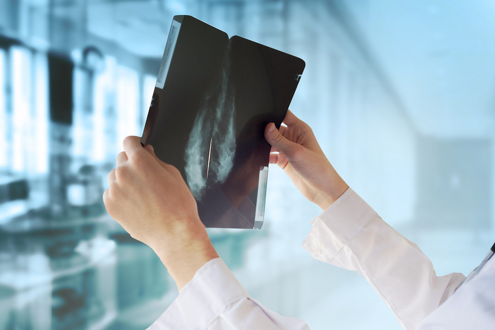 Physician holding mammography films.