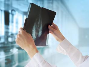 BMG Krankenhausbericht 2020 Teil 2:     11 % weniger  Atemwegserkrankungen (ARE) in 2020 als in 2019