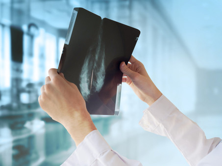 Screening mammography from age 40 may reduce risk of breast cancer death