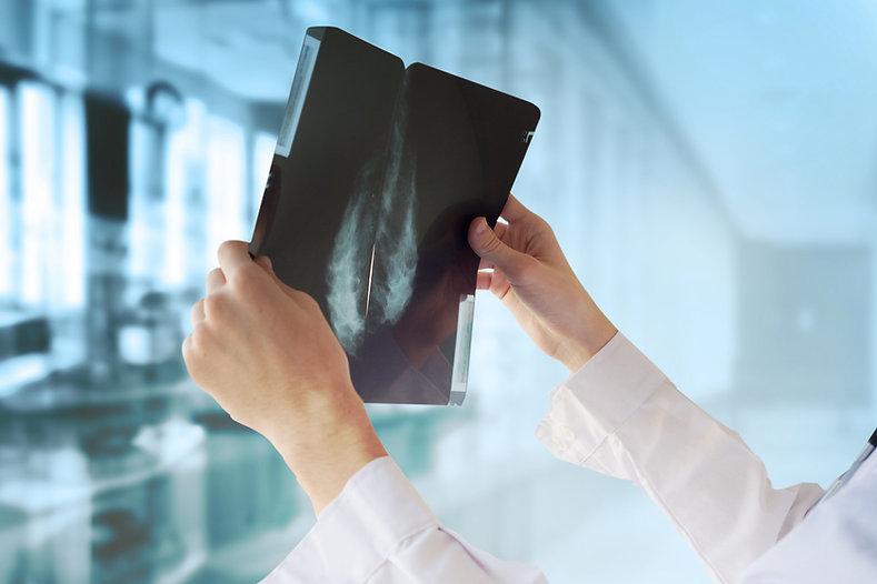 Doktor mit Mammografie