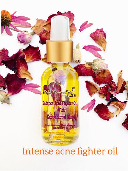 bulk order intense acne fighter oil