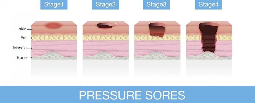 [Pressure sores]