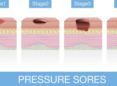 Pressure sores: Causes, treatment, and prevention