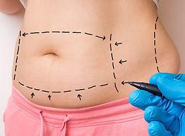 abdominoplastia-e1543600874115-1920x930.