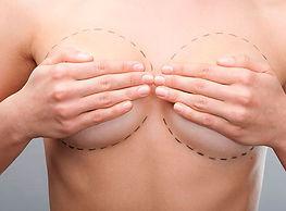 mamoplastia-redutora-mob.jpg