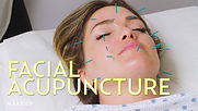 acupuncture facial - retreat.jpg