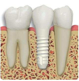 Czy implanty stomatologiczne są zdrowe? Implanty cyrkonowe vs implanty tytanowe.