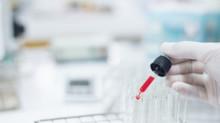 Przegląd badań naukowych o szkodliwości fluoru