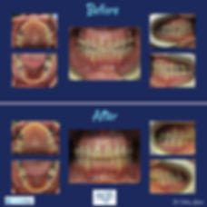 Invisalign Before and After.jpg