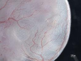 Germany, Scientific focus WaskowLab, Hemaopoiesis, Hämatopoese, Stammzelle, stem cell, Germany, Deutschland, Transplantation, Xenograft, Blut, blood
