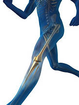 Leg Lengthening Clinic Running Person Bone - Get Taller- Increase height Man/Women