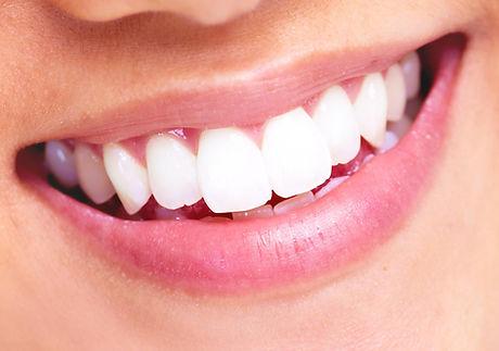 dents-blanches.jpg.jpg