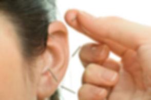 ear acupuncture.jpg