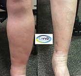 Veins and Lymphedema.png