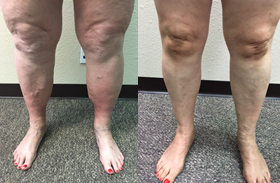 varicose veins and inflammation.png