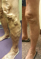 varicose veins and blood clots-.png