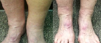 varicos vein and swelling.png