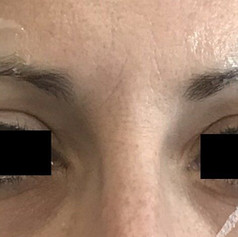 Brow treatment before