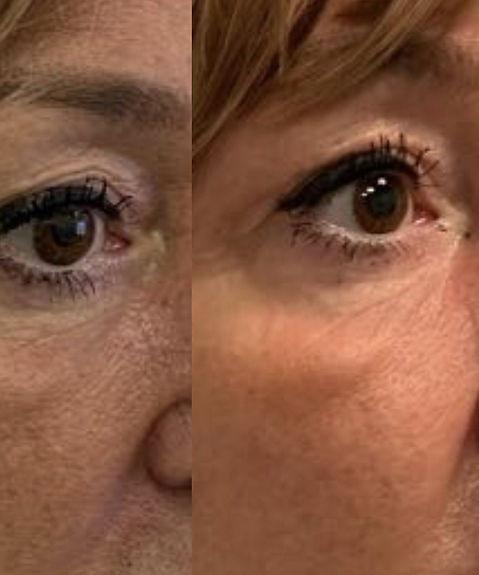 Plasma skin tightening of upper eye lids. Before then 3 weeks later.jpeg