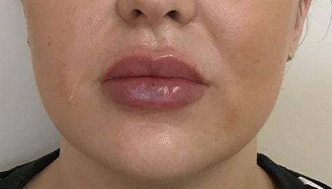 Fuller lips after. Fullness achieved with 0.55mls of filler.jpeg
