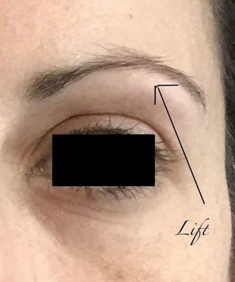 Brow lift after, Achieved with 0.5ml of filler at the arch of the brow.jpeg