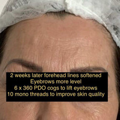 Eyebrow treatment after