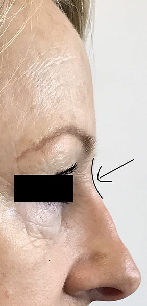 Non surgical rhinoplasty. flattened ridge with only 0.2ml of filler to give a straighter e